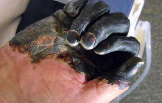 black death patient hand